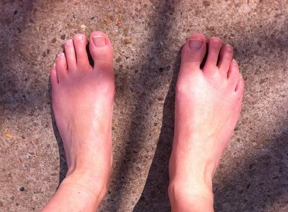 zon op mijn benen, blote voeten